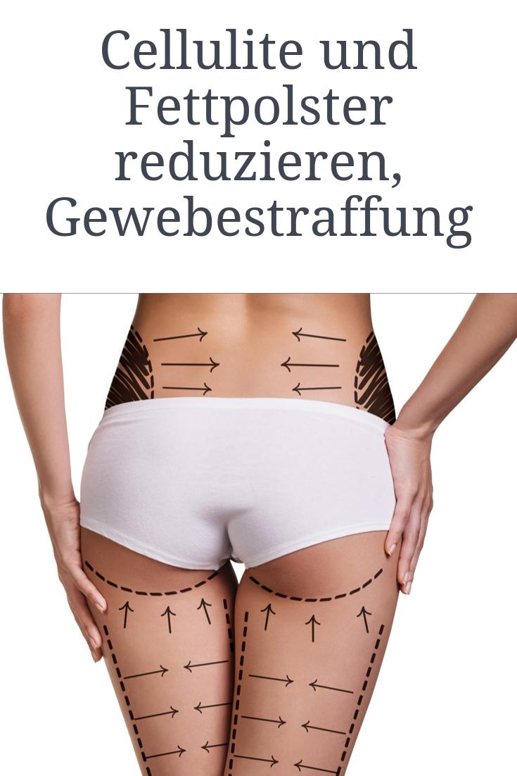 Cellulite und Fettpolster reduzieren, Gewebestraffung